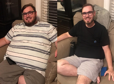 Quentin Hart, before and after bariatric surgery. In both pictures, he is sitting on a couch, wearing shorts and a t-shirt, with a smile, a beard and eyeglasses.