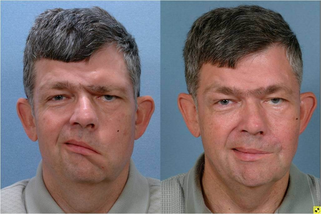 Dr. Patrick Byrne Patient - Diagnosis: left facial paralysis. Treatment: Temporal Tendon Transfer (T3) surgery, left browlift, left facelift and placement of gold weight implant.