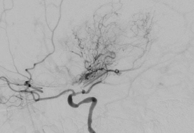 Moyamoya as seen on an angiogram