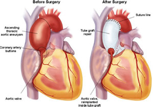 Illustration of before and after heart surgery