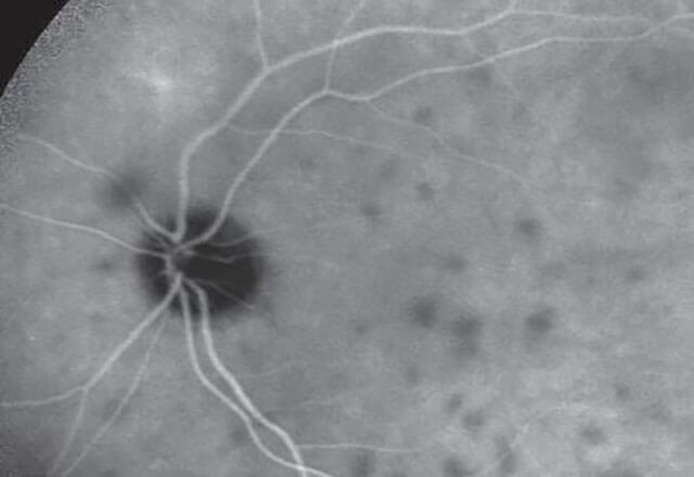 image of eye disease