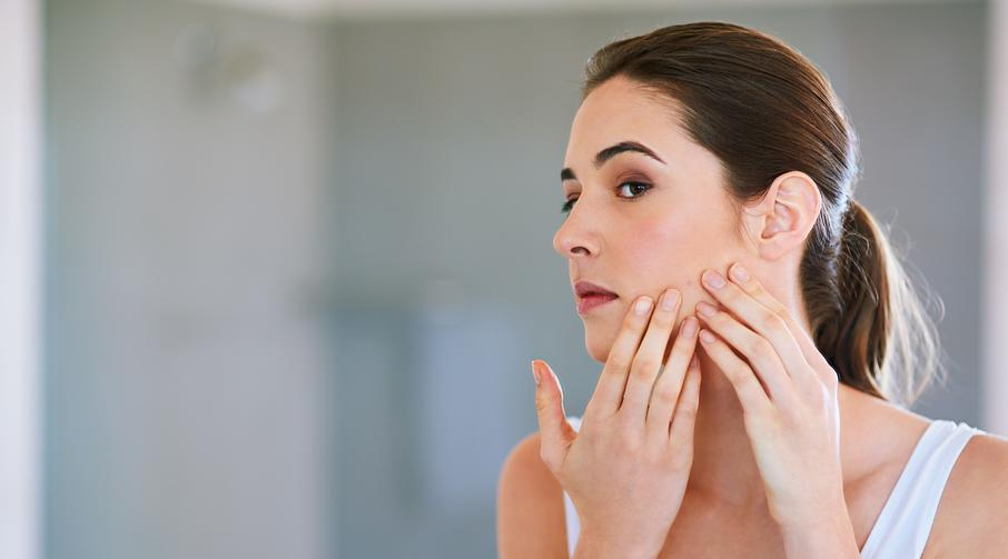 Got Adult Acne? Get Answers from an Expert