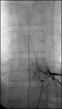 Spinal angiography