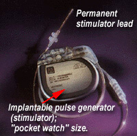 Permanent device implantation. The pulse generator is about the size of a pocket watch