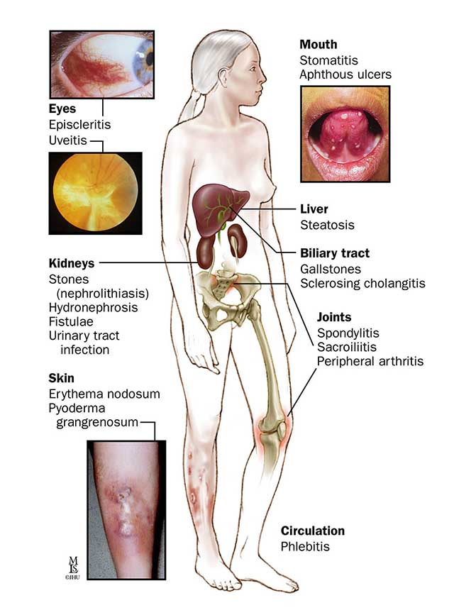 body photos of symptoms