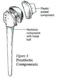 Illustration of a shoulder joint prosthetic components. Described under the heading What part of the shoulder is replaced?