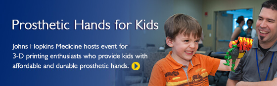 boy with prosthetic hand holding toy
