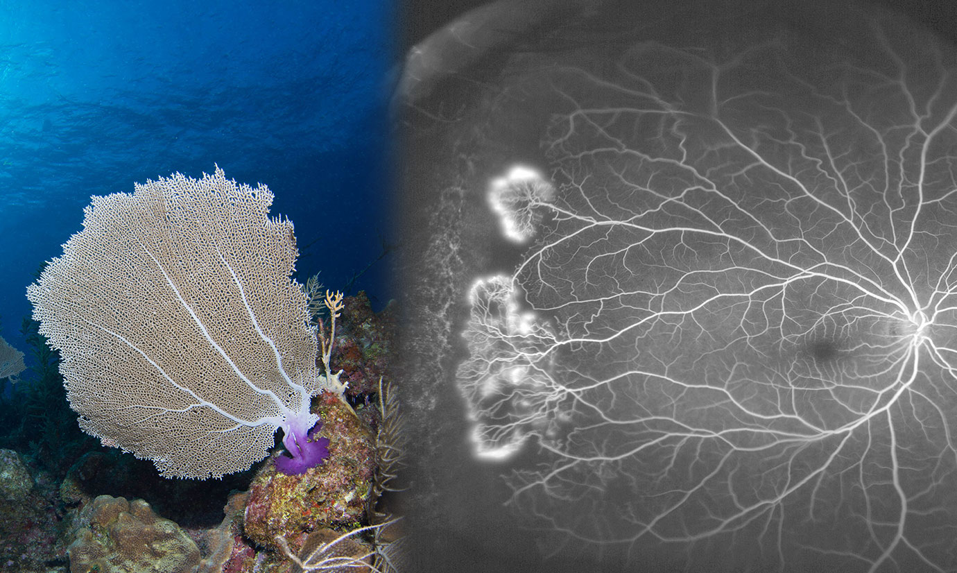 A graphic shows a sea fan next to a sea fan lesion.