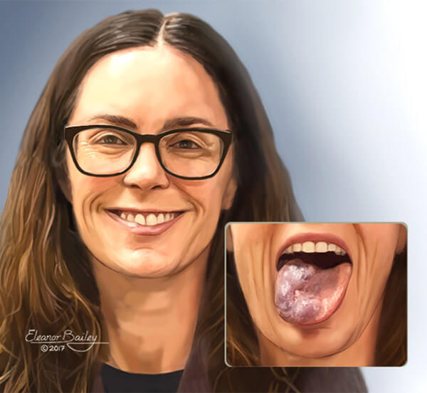 Woman with a venous malformation on her tongue