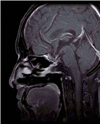 Pituitary macroadenoma after surgery (side view)