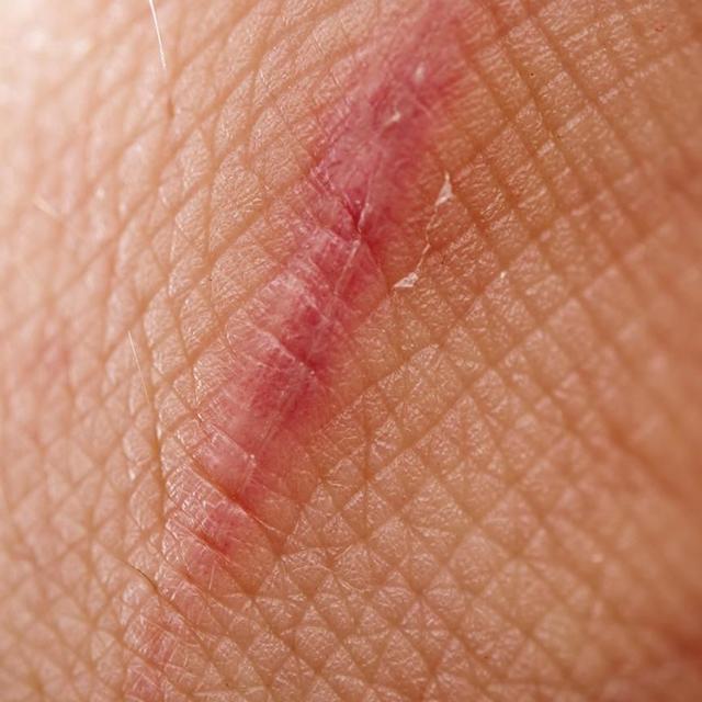 An example scar
