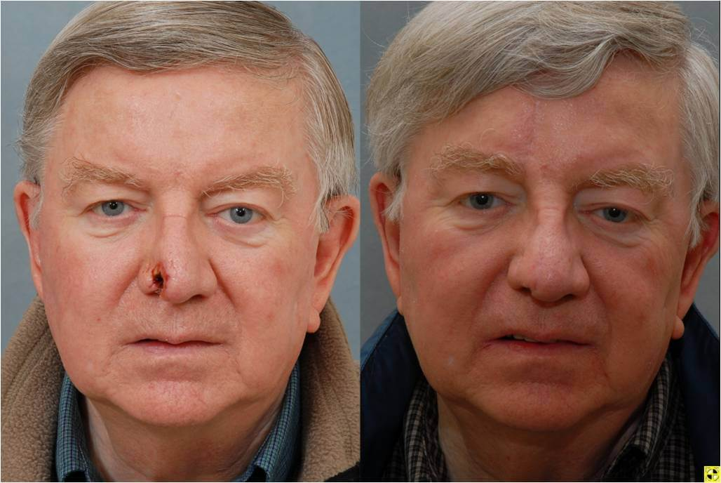 Dr. Patrick Byrne Patient - Treatment: Full thickness nasal defect treated with paramedian forehead flap and internal nasal reconstruction.