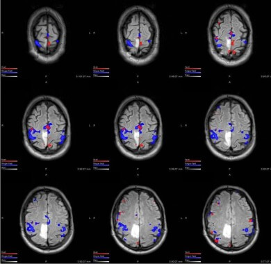 fMRI of metastatic brain tumor