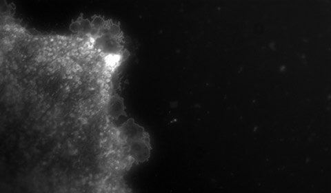 Black and white slide showing vesicles being released from an astrocyte in the brain.