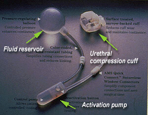 Three components of the artificial urinary sphincter: fluid resevoir, urethral compression cuff and activation pump
