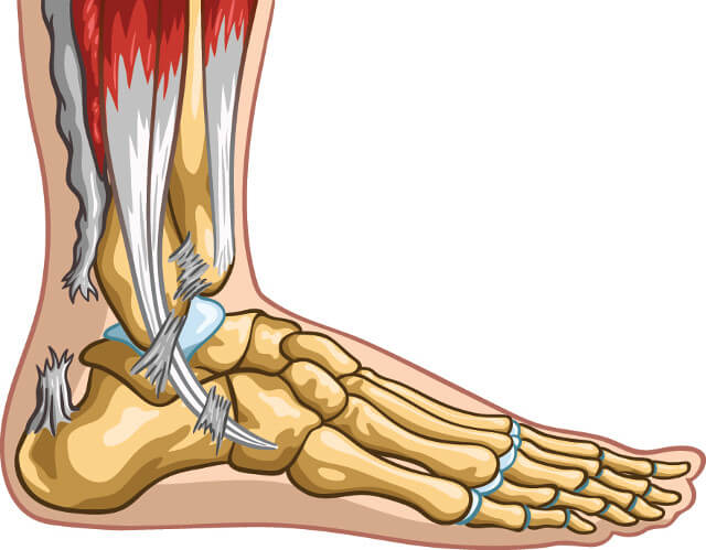 an illustration of an Achilles tendon rupture