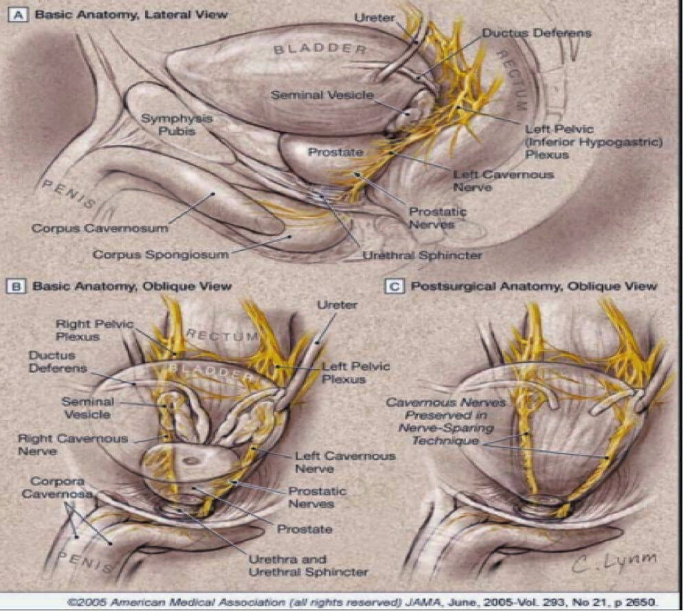 Anatomy of the prostate and other pelvic structures
