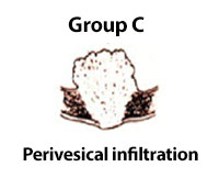 Perivesical Infiltration