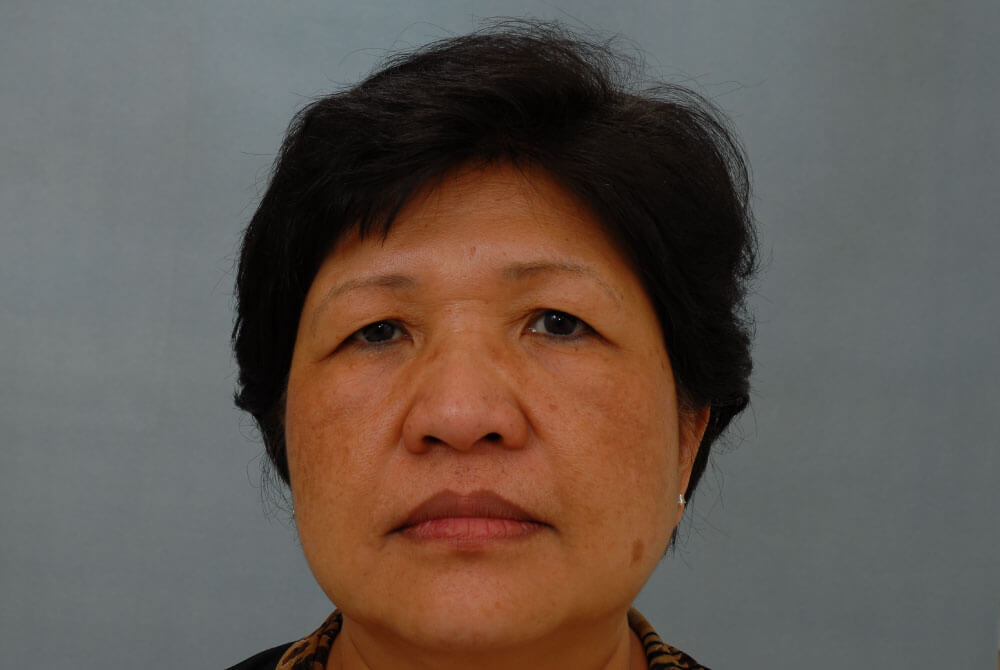 Eyelid Lift | Johns Hopkins Facial Plastic and Reconstructive Surgery