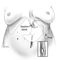 Illustrated diagram of adjustable gastric banding system