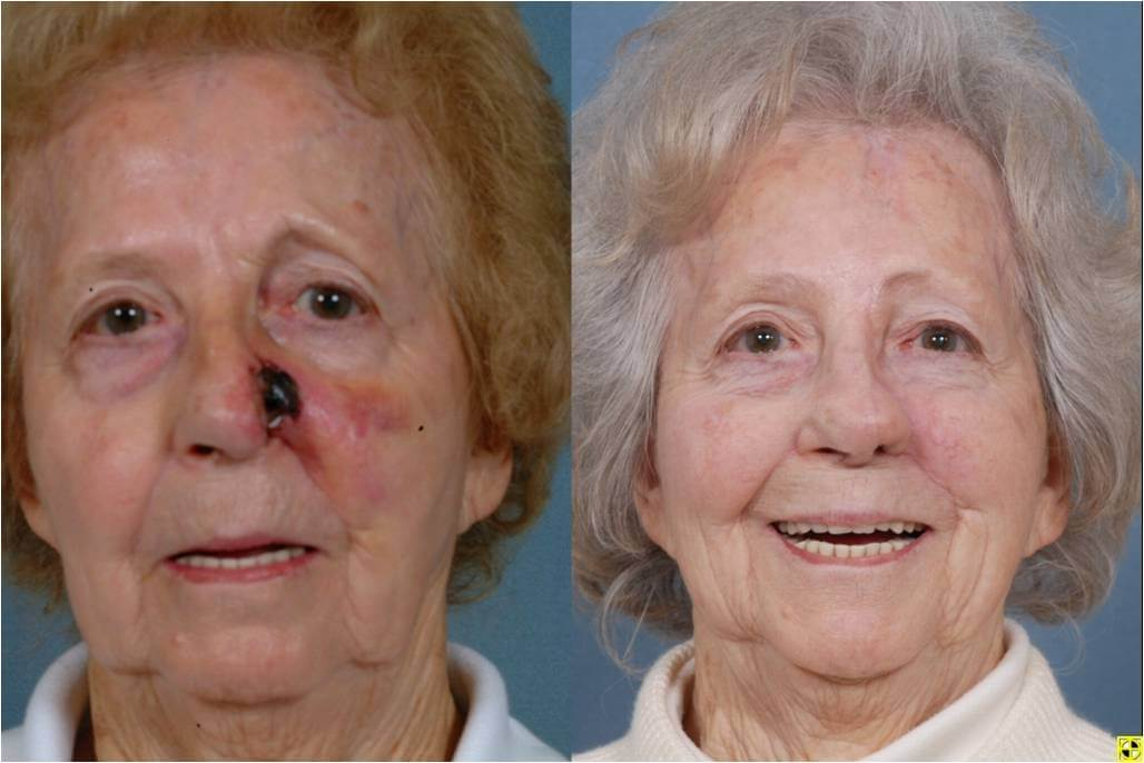 Dr. Patrick Byrne Patient - Treatment: Full thickness defect repaired with paramedian forehead flap, cartilage grafts and internal nasal reconstruction.