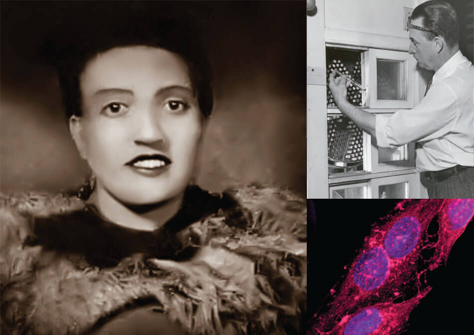Transformed Cells Hela Hela Cells Transform Medical