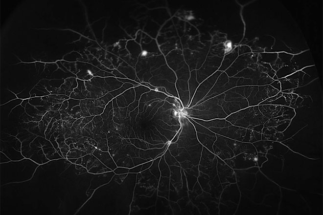 Blood vessels in eye that feed the retina